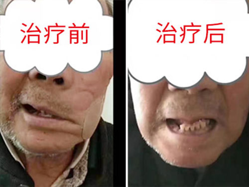 <font color='#006600'>鹤壁面瘫医院讲解面瘫造成的影响</font>